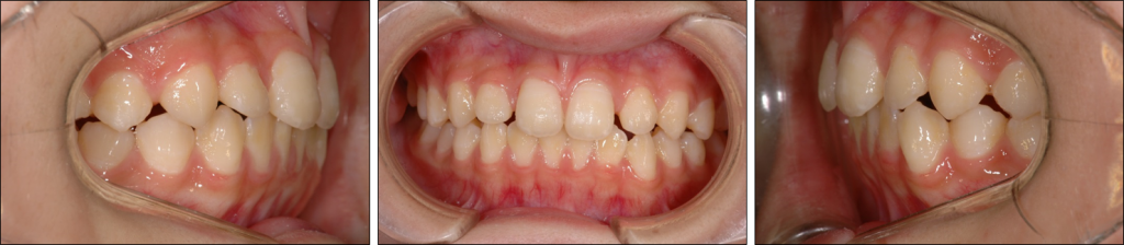 顎顔面口腔育成15