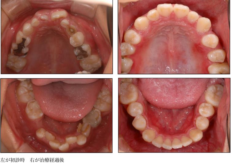 顎顔面口腔育成療法