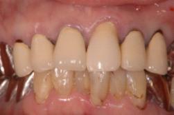 佐賀歯科1211041
