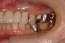 佐賀歯科1211042